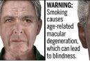 Sigaranın Göz Hastalıkları Etkisi
